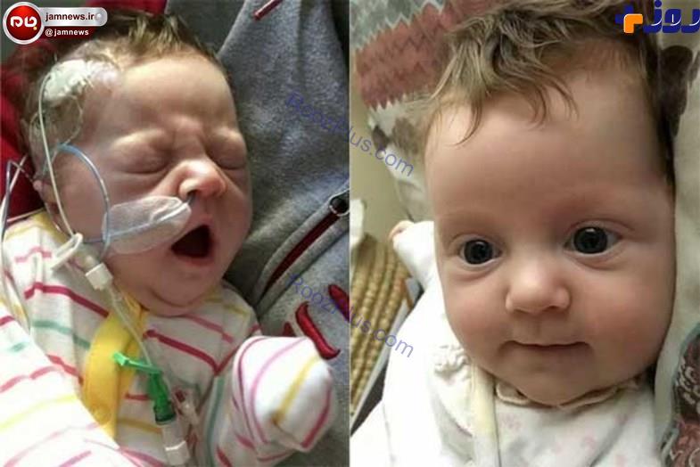 روده های این نوزاد خارج از شکمش است+عکس